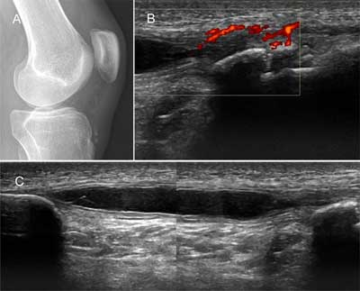 Intratendinous Patellar Ganglion Cyst with Coexistant Osgood