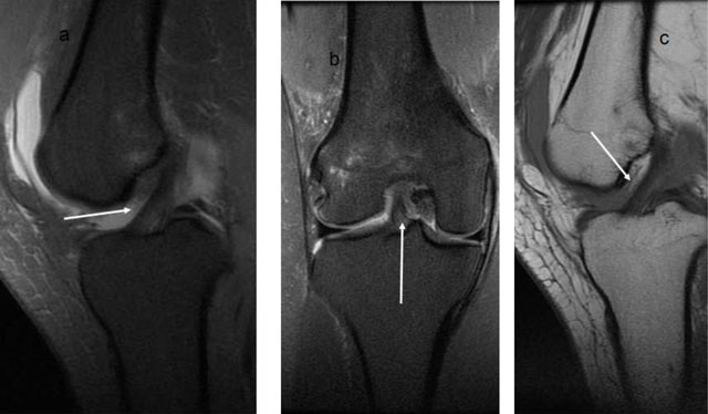 imaging the anterior and posterior cruciate ligaments
