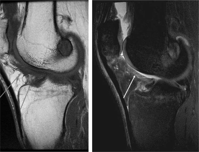 Imaging the Anterior and Posterior Cruciate Ligaments.