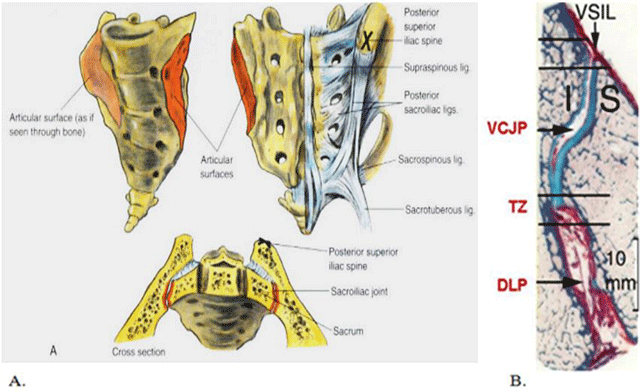 Diagnostic Value Of Mri Of The Sacroiliac Joints In Juvenile