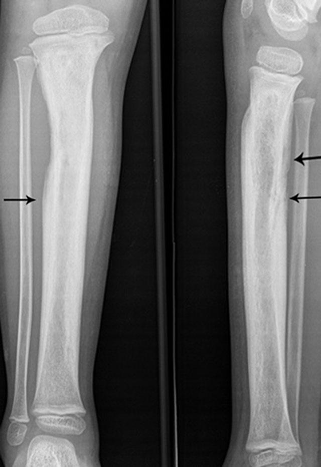 The Many Faces of Osteomyelitis: A Pictorial Review