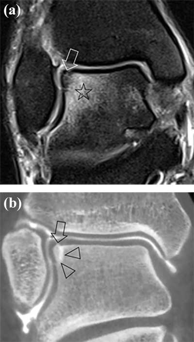 Staging of Osteochondral Lesions of the Talus: MRI and Cone