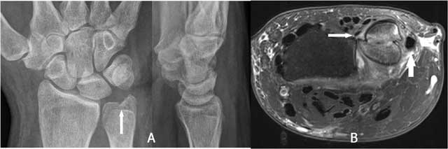 Imaging Findings of the Distal Radio-Ulnar Joint in Trauma