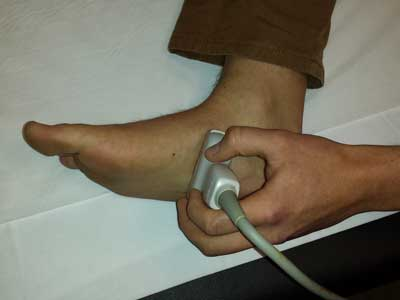 Plantar Vein Thrombosis: An Unusual Cause of Plantar Pain