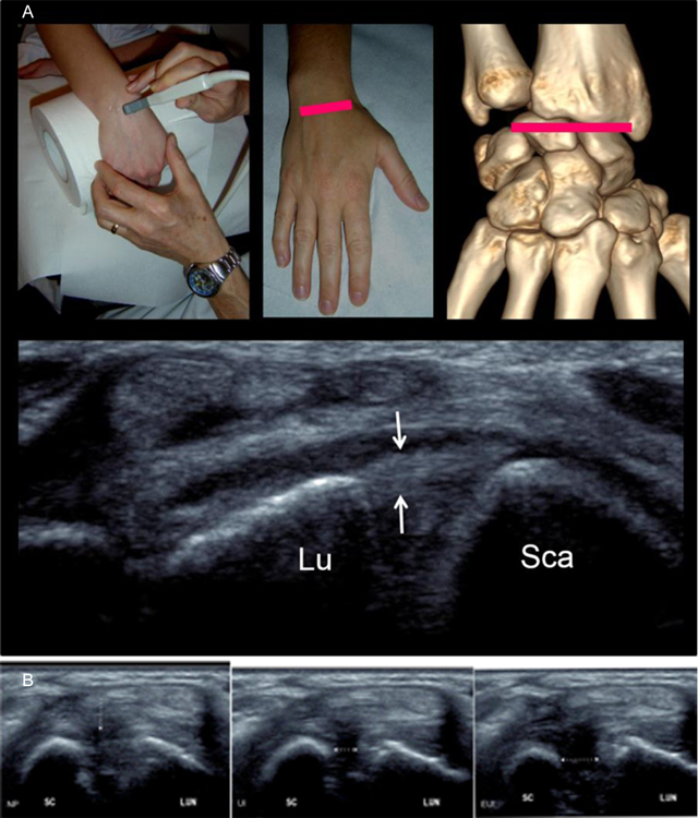 Imaging of Wrist Injuries: A Standardized US Examination in Daily ...