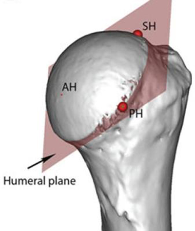 The Normal 3D Gleno-humeral Relationship and Anatomy of the Glenoid ...