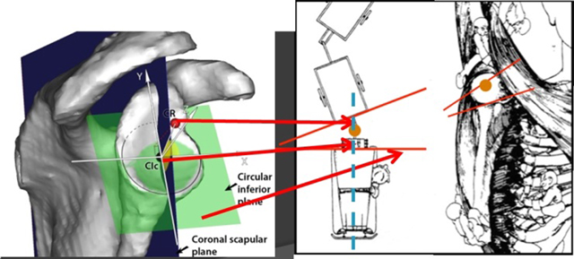 The Normal 3d Gleno Humeral Relationship And Anatomy Of The Glenoid