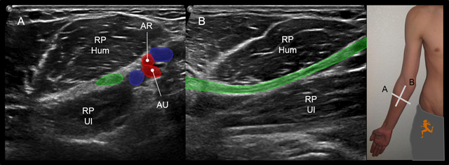 The Median Nerve at the Carpal Tunnel … and Elsewhere