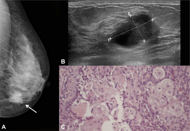 Imaging Findings of Metaplastic Carcinoma of the Breast with