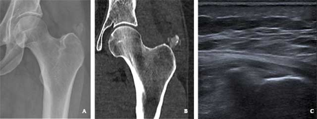A Case of Bilateral Acute Calcific Tendinitis of the Gluteus Medius,  Treated by Ultrasound-guided Needle Lavage and Corticosteroid Injection
