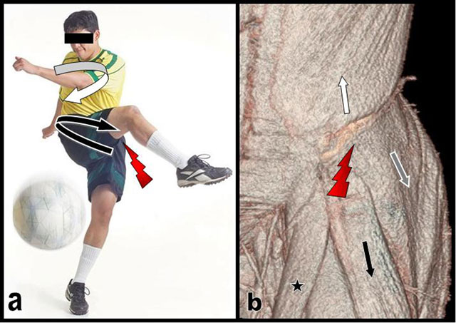 Acute Avulsion of the Iliac Crest Apophysis in an Adolescent Indoor ...