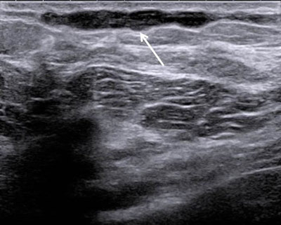 pain ultrasound Breast