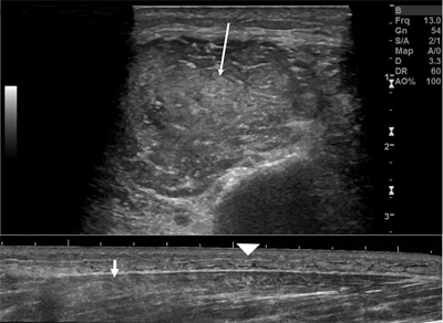 Acute Exertional Compartment Syndrome in a Young Amateur