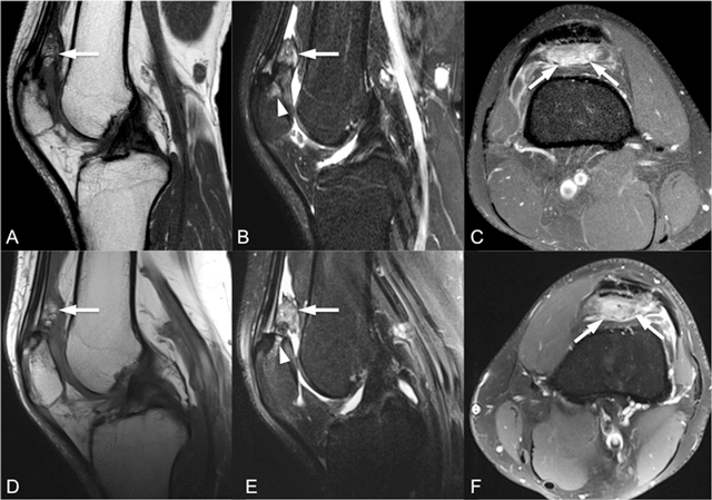 Unusual Symptomatic Multipartite Patella Associated With Quadriceps Fat Pad Edema Epidemiology tends to occur in young adults. symptomatic multipartite patella